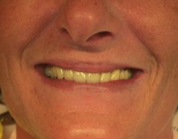 ein strahlendes Lächeln einer glücklichen Patientin.